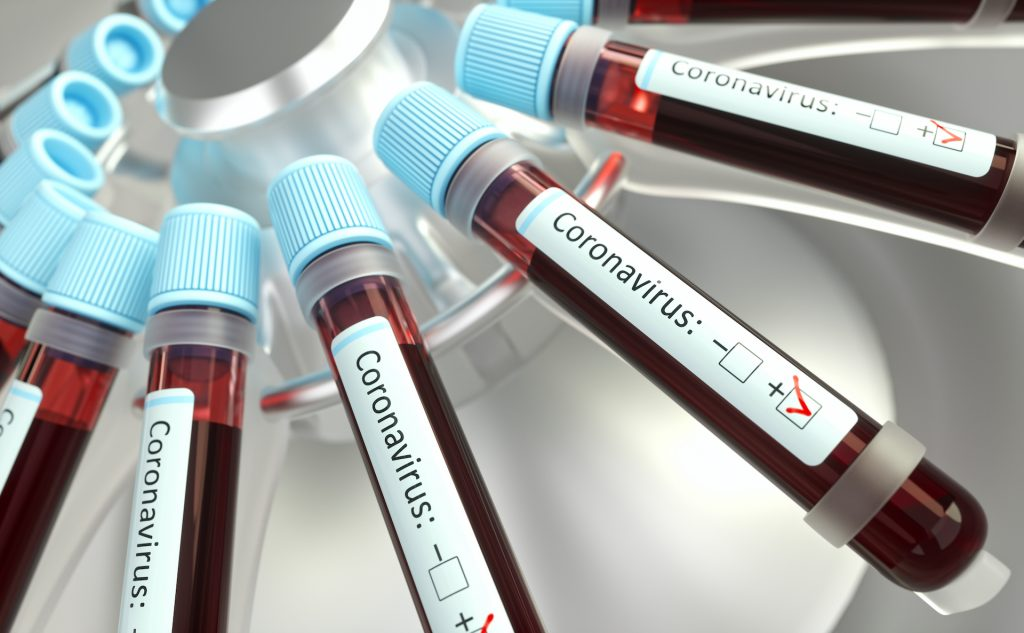 Coordinated and evidence-based measures are necessary against COVID-19 outbreak says the global travel agency community 1